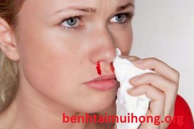 chảy máu cam một bên mũi